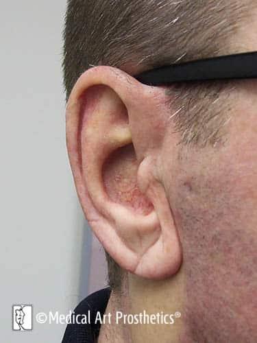 Auricular - Ear Prosthetics – Medical Art Prosthetics