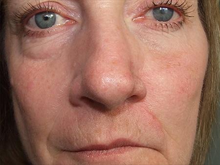 Nasal Nose Prosthetics Medical Art Prosthetics