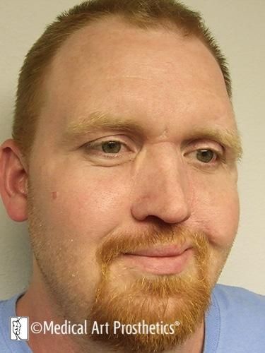 Nasal - Nose Prosthetics – Medical Art Prosthetics