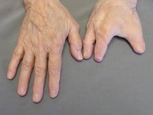 life after finger amputation