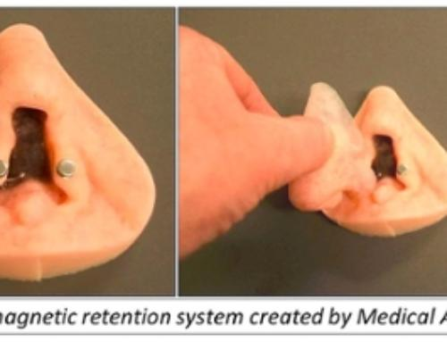Craniofacial Prosthesis at Northwestern University Prosthetics-Orthotics Center